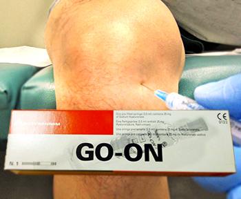 препарат go-on для лечения суставов в спб
