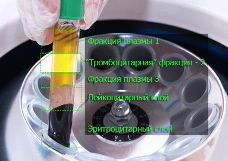 Центрифугирование крови - фракции