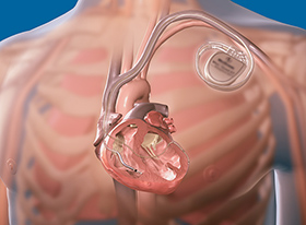 МРТ с кардиостимулятором