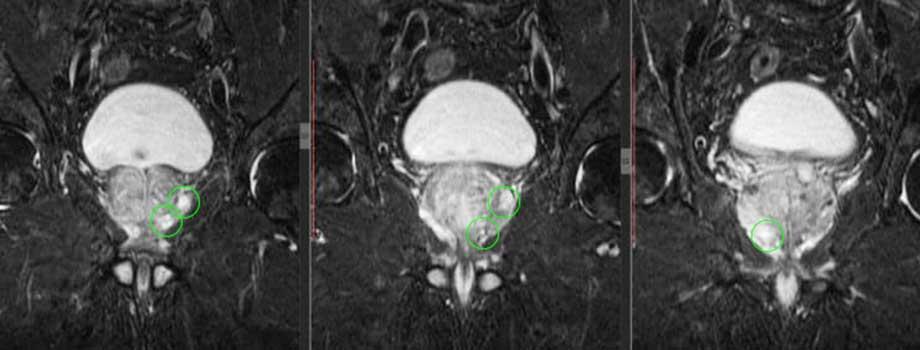 МРТ предстательной железы в СПБ контрастное